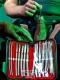 Medical equipment Hegar Dilators 14-Piece Set